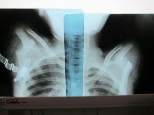 © Akin Chan 一张令人心痛的X光片